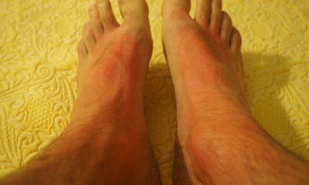 Allergia termica: cosa si può fare al riguardo