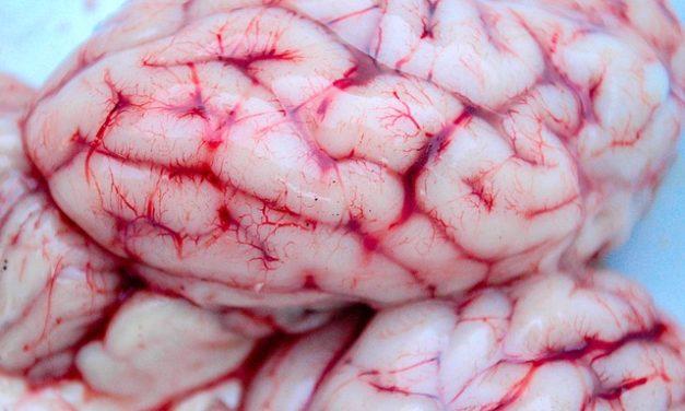 Anatomia: il nervo sciatico brevemente delineato