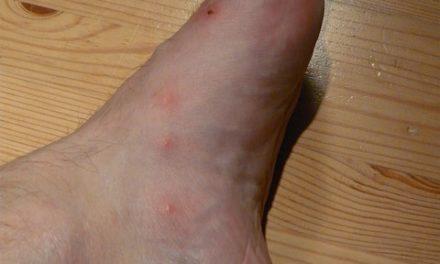Allergia ai detergenti: trattare l'eruzione cutanea come segue