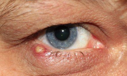 Conigli e infiammazione oculare: fatti che vale la pena conoscere sulle opzioni di trattamento