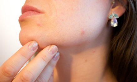 Trucco di acne sopra: come funziona